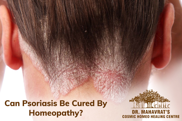 Can Psoriasis Be Cured By Homeopathy?