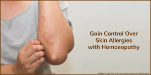 Gain-Control-Over-Skin-Allergies-with-Homoeopathy-Dr-Mahavrat-Patel