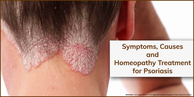 Symptoms, Causes and Homeopathy Treatment for Psoriasis
