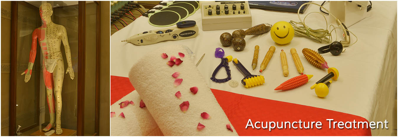 Acupuncture Treatment Cosmic Homeopathy Healing Centre
