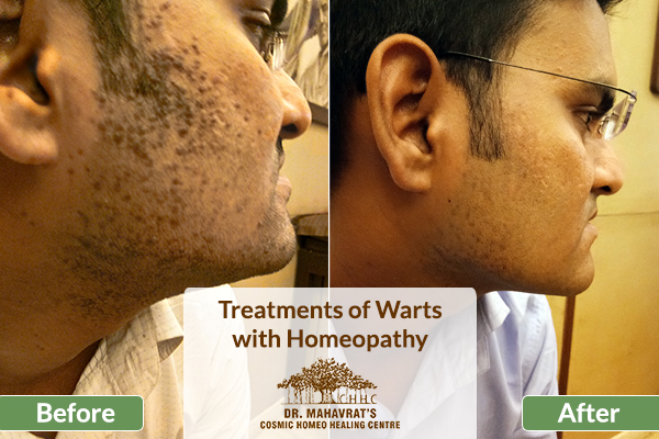 Treatments of Flat Warts with Homeopathy