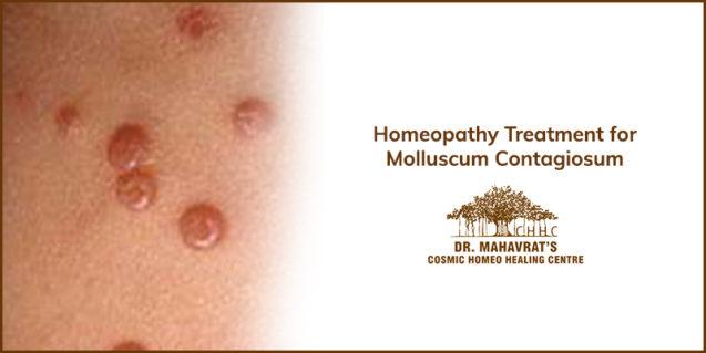 Homeopathy Treatment for Molluscum Contagiosum