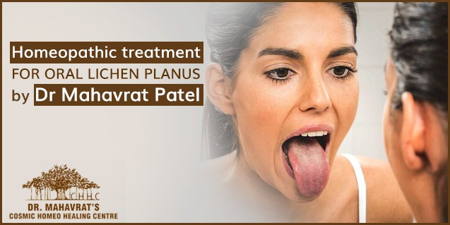 Homeopathic treatment for Oral Lichen Planus by Dr. Mahavrat Patel